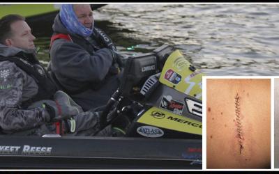 Melanoma is No Joke: Reese, Ehrler remove stitches